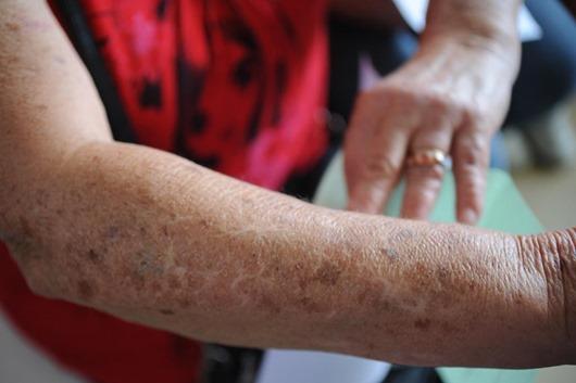 cãncer de pele-Arquivo Agência Brasil