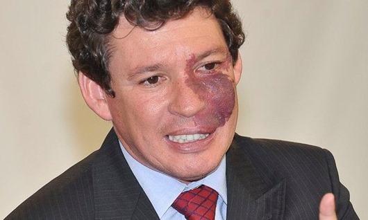 Deputado Reginaldo Lopes- ABr