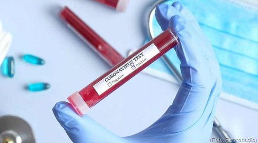 teste_coronavírus